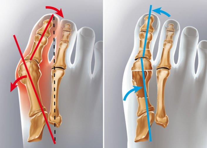 chirurgie-orthopedique-hallux-valgus-Tunisie