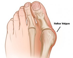 anatomie-Hallux-Valgus
