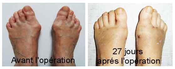resultat-chirurgie-orthopedique-hallux-valgus-Tunisie