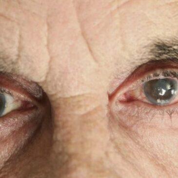 Votre guide avant de décider de faire une opération de la Cataracte